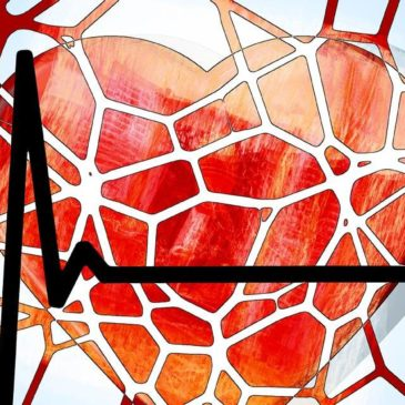 Are you are Risk for Peripheral Artery Disease?